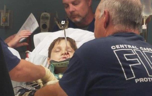 Ребенок упал лицом на шампур и выжил