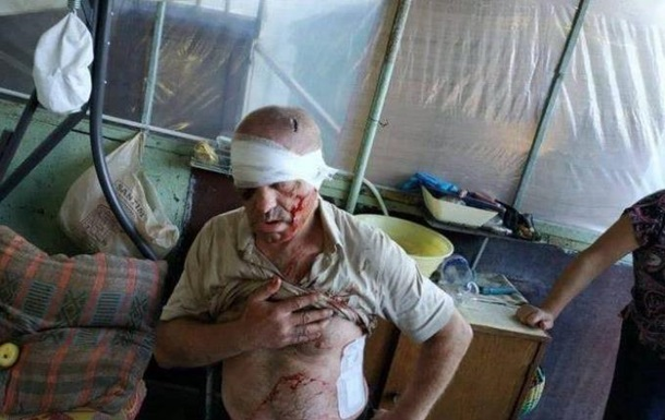 В Одесі підстрелили злодія-домушника