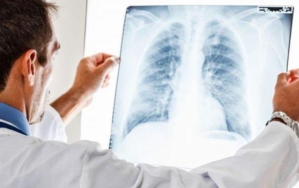 Україна потрапила в топ-5 антирейтингу з туберкульозу
