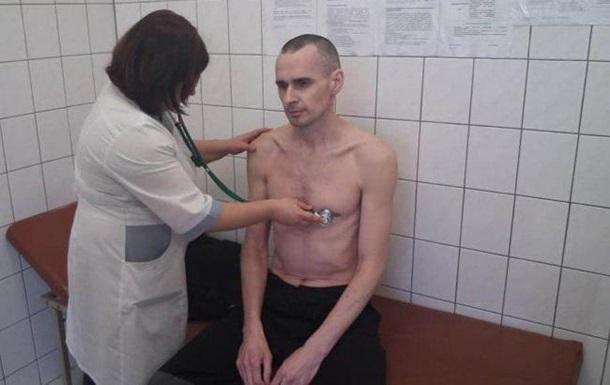 Москалькова розповіла про стан Сенцова