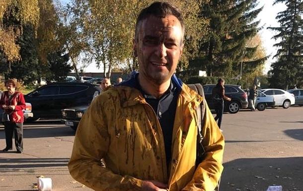 Полиция установила, кто облил нечистотами журналиста Гнапа