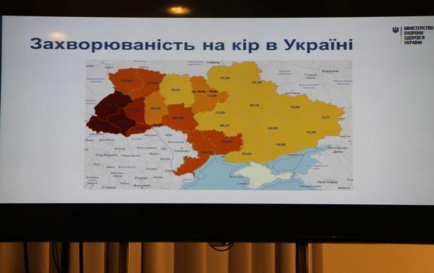 Заболеваемость корью в Украине выросла в семнадцать раз