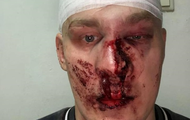 В Харькове избили экс-командира Восточного корпуса