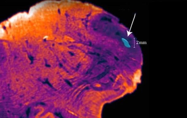 В человеческом мозге нашли неизвестный участок