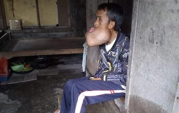 У роті філіппінця виросла пухлина, як голова