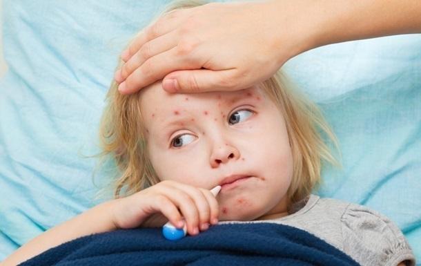 Корью в Украине заболели почти 47 тыс. человек