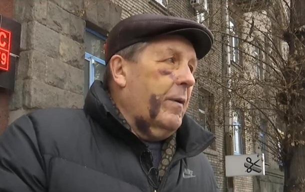 В Киеве избили авиаконструктора Мрии