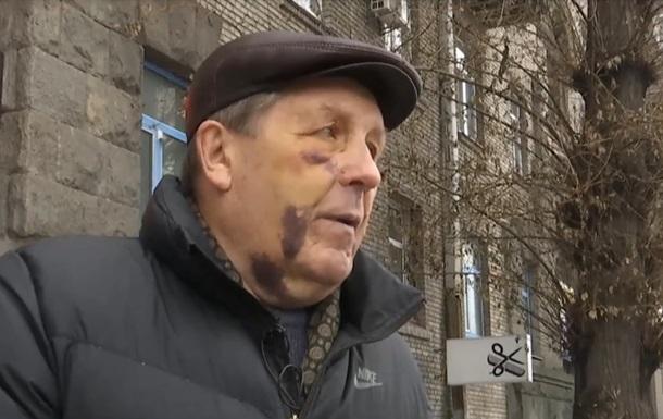 До справи про побиття авіаконструктора в Києві підключилося ДБР