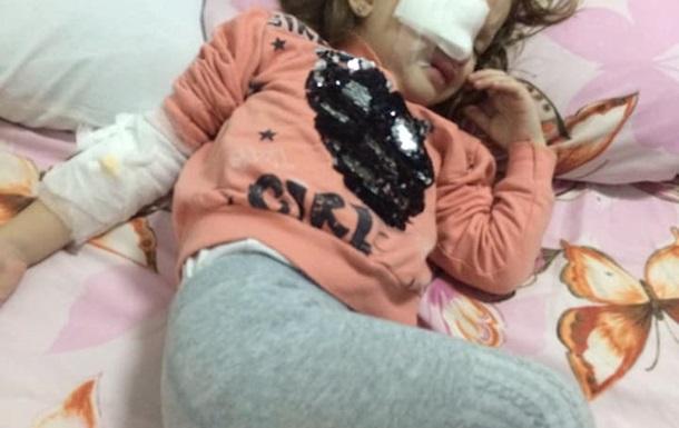 В детсаду Днепра ребенку прокололи глаз карандашом