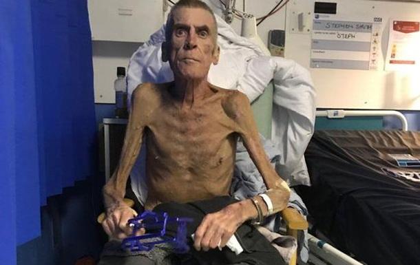 В Англии 64-летний старик весом 38 кг был признан работоспособным
