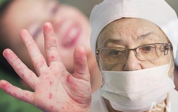 Осторожно, корь: как заболевание проходит у привитых