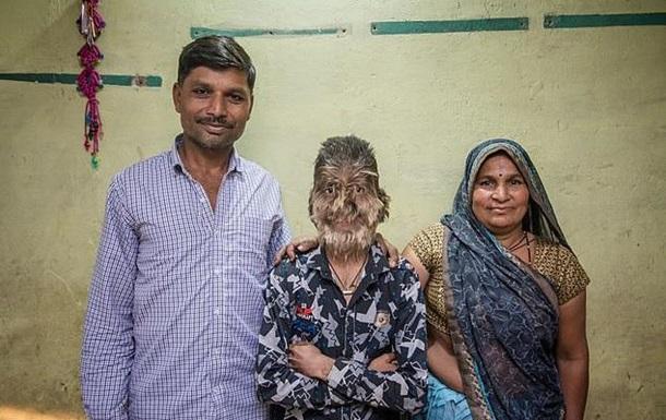 В Індії хлопчик через хворобу став  перевертнем