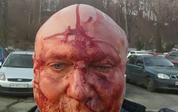 В Киеве проломили голову догхантеру. 18+