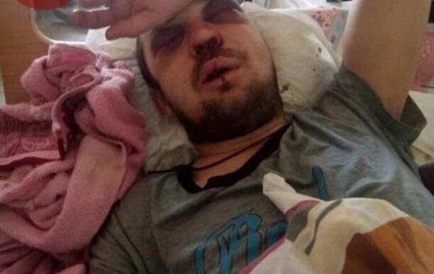 Водитель киевской маршрутки жестоко избил пассажира
