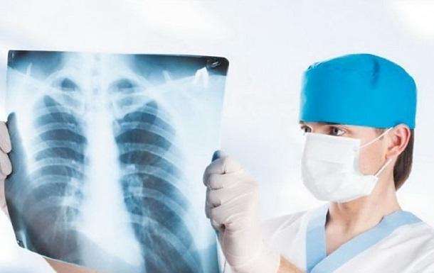 В Україні зменшилася кількість хворих на туберкульоз - МОЗ