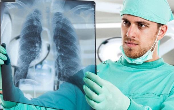 В мире отмечают День борьбы с туберкулезом