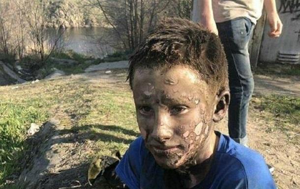 У Запоріжжі дитина вижила після удару струмом у 10 тисяч вольт