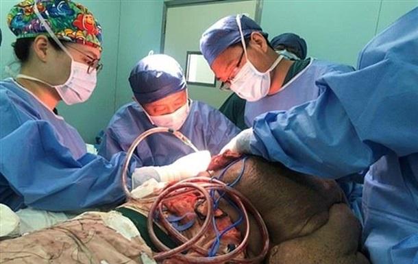 Китайцеві видалили 30-річну пухлину вагою 15 кілограмів
