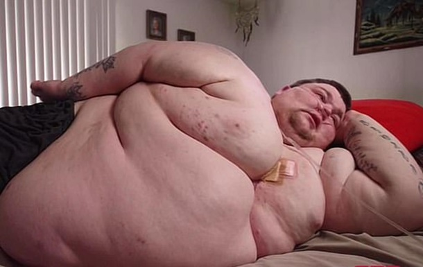 330-килограммовый американец похудел на 188 кг чтобы выжить