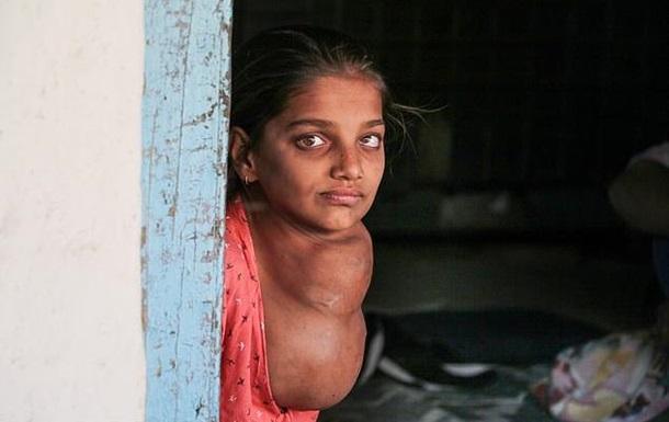 12-летняя девочка десять лет  выращивает  на шее опухоль