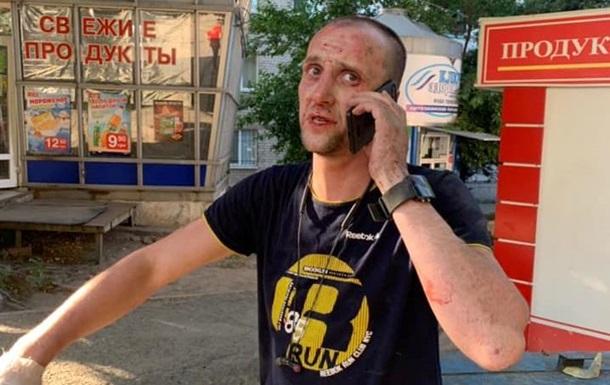 В Днепре мужчина избил камнем кондуктора трамвая