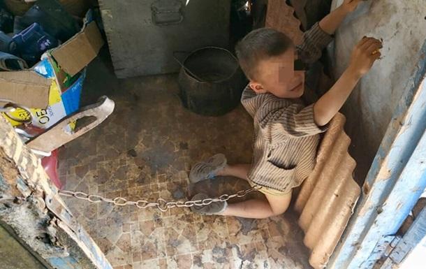 На Луганщині батьки тримали на ланцюзі маленьку дитину