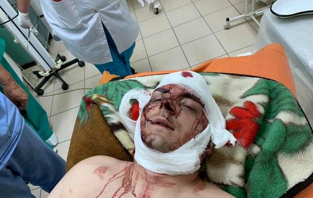 Избиение экс-мэра Конотопа: у полиции есть три версии