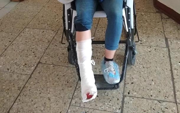 В аэропорту Жуляны на девушку упал шкаф: у нее два перелома