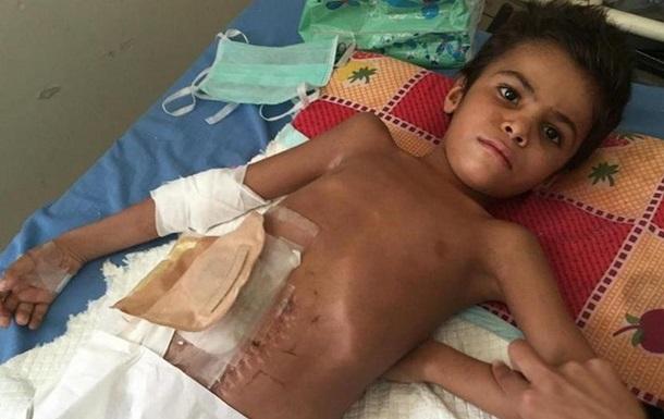 ООН: 12 тисяч дітей було вбито або поранено в конфліктах
