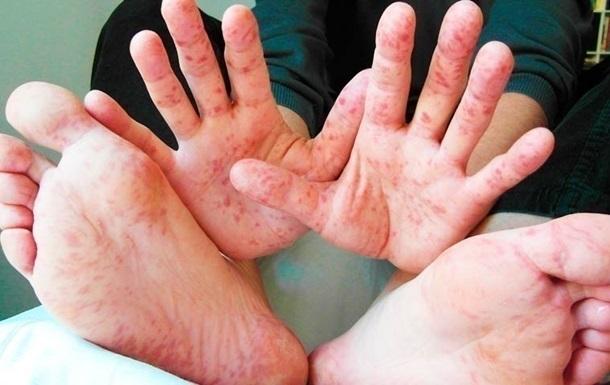 Кір в Україні: в липні захворюваність впала удвічі