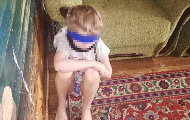 Опекун в Днепре посадила восьмилетнего ребенка на цепь