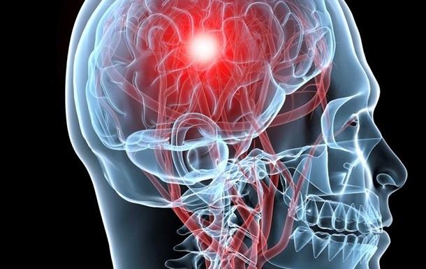 Названы причины возникновения инсульта