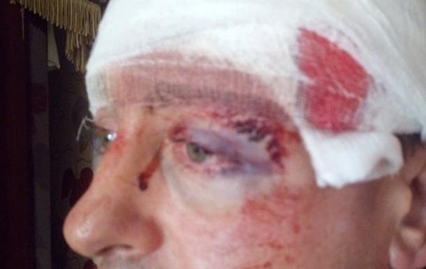 На Житомирщине молотком избили депутата. 18+