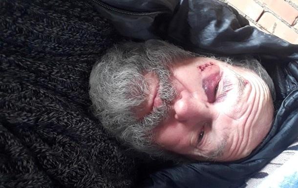 Секретаря епархии УПЦ КП избили в Харькове