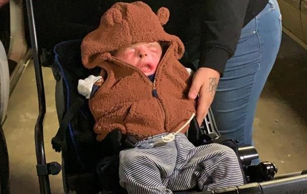 У Техасі виписали хлопчика, який народився без шкіри