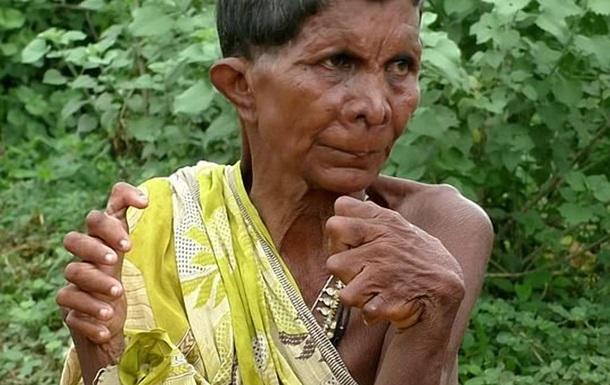 Генетическая аномалия превратила женщину в  ведьму