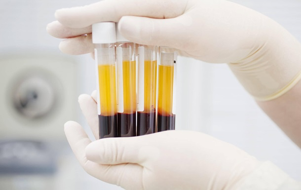 Уся донорська кров забруднена слідами кави і ліків - вчені