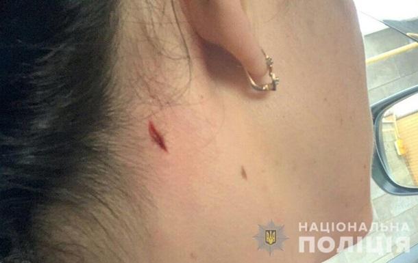 У Миколаєві жінка постраждала під час поліцейських стрільб