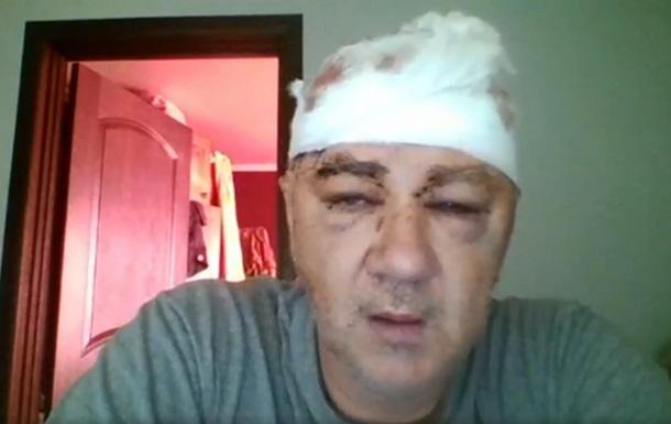 На Одесчине жестоко избили ветерана АТО