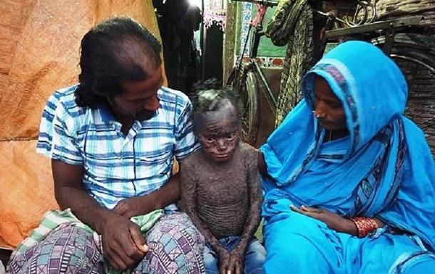 В Індії живе хлопчик-змія