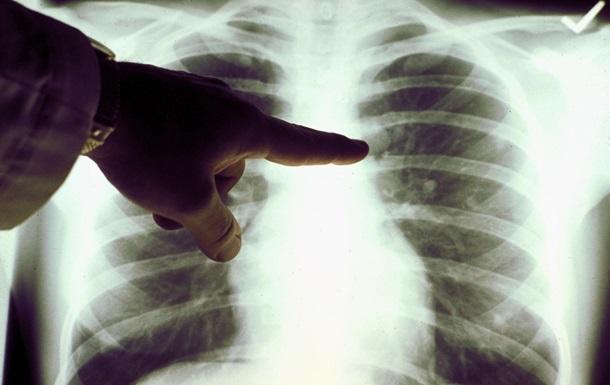 Смертельная пневмония. Что происходит в Украине