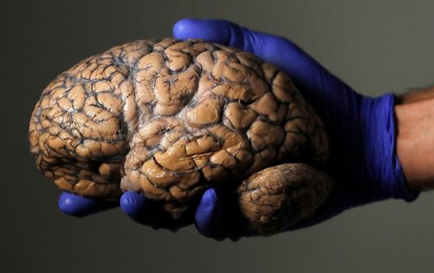 Названа главная угроза для человеческого мозга