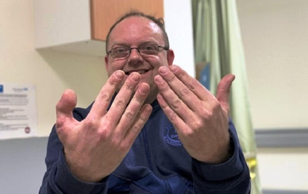 Британцеві пришили палець ноги замість пальця руки