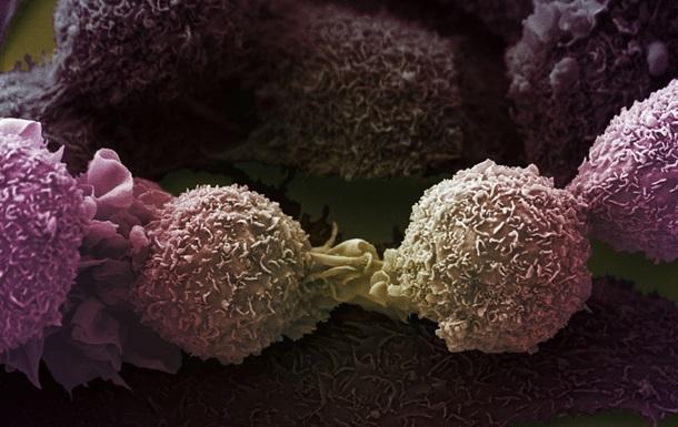 Знайдено мутації, що викликають рак легенів