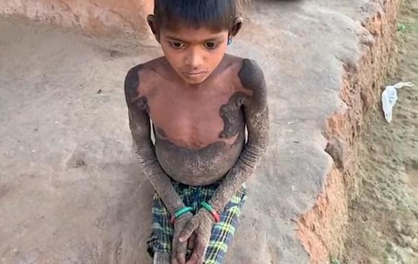 В Індії дитина  скам яніла  через рідкісну хворобу