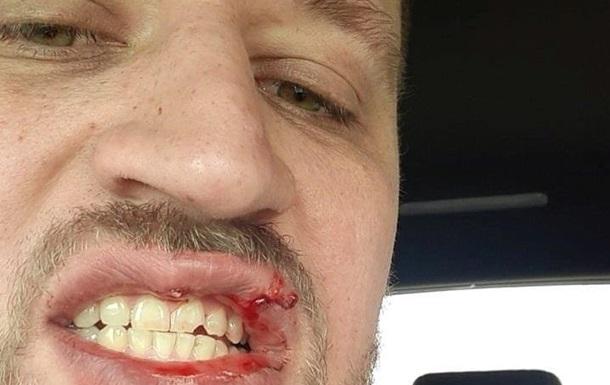 Ветеран АТО заявил, что его избили в Киеве