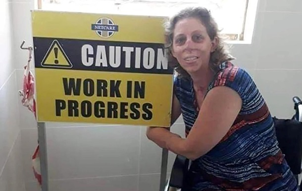 Женщина лишилась рук и ног из-за укуса мангуста