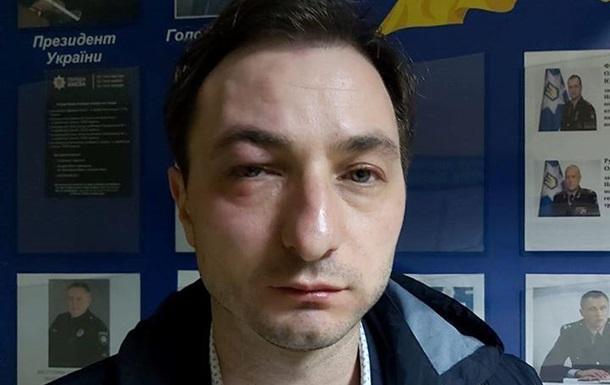 Головлікаря Націнституту раку побили у Києві