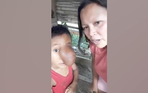 На Филиппинах у ребенка вырос  хобот