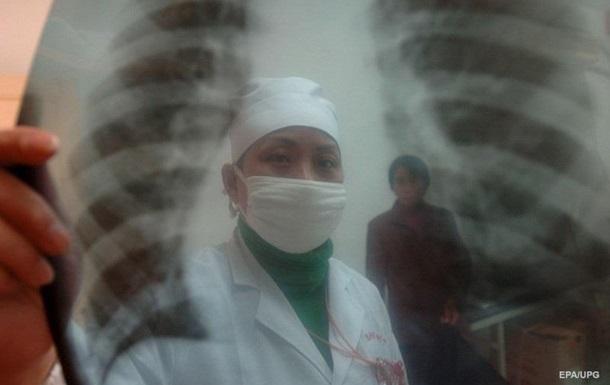 От пневмонии в Житомирской области за два месяца умерли 22 человека